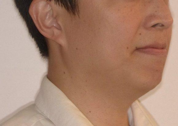 隱適美-隱形矯正-門牙飛-牙齒擁擠-牙齒矯正臉型-矯正前-側面
