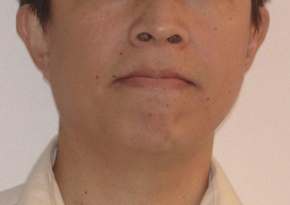 隱適美-隱形矯正-門牙飛-牙齒擁擠-牙齒矯正臉型-矯正前-正面