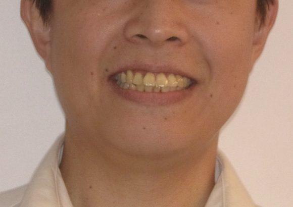 隱適美-隱形矯正-門牙飛-牙齒擁擠-牙齒矯正臉型-矯正前-笑容