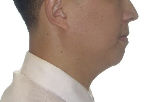 隱適美-隱形矯正-門牙飛-牙齒擁擠-牙齒矯正臉型-矯正後-側面下巴