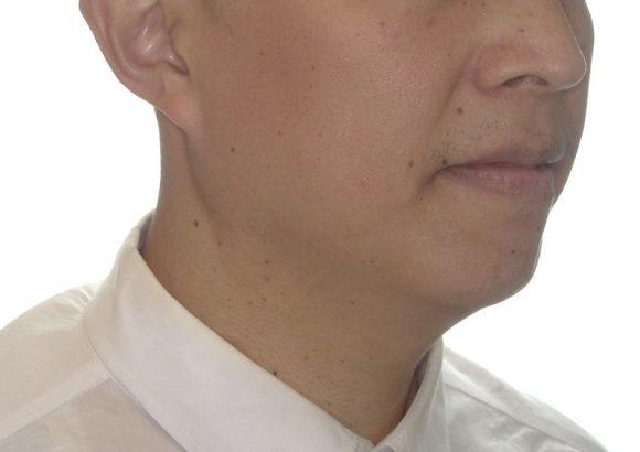 隱適美-隱形矯正-門牙飛-牙齒擁擠-牙齒矯正臉型-矯正後-側面