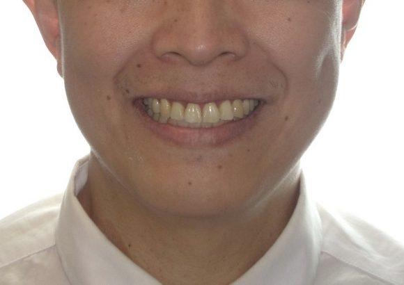 隱適美-隱形矯正-門牙飛-牙齒擁擠-牙齒矯正臉型-矯正後-笑容