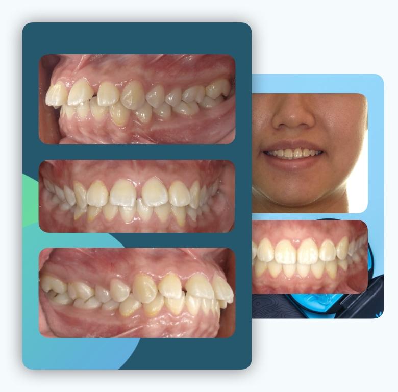 隱適美-兒童隱適美-隱形矯正-門牙縫-上門牙飛-台中-隱形矯正-牙醫-推薦-楊念珊