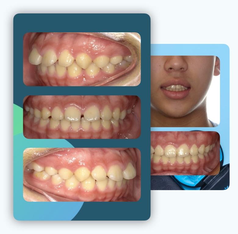 隱適美-兒童隱適美-隱形矯正-門牙縫-台中-隱形矯正-牙醫-推薦-楊念珊