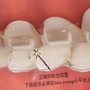專為矯正深咬設計的隱適美【bite ramp】,輕鬆達到咬合調整