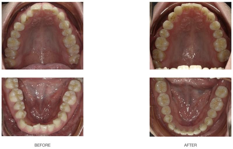 隱適美-隱形矯正-深咬-前牙反咬-牙縫大-牙齒矯正前後-台中隱適美推薦-楊念珊