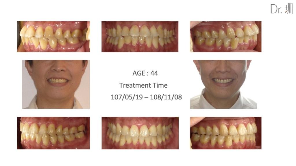 隱適美-隱形矯正-門牙飛-牙齒擁擠-牙齒矯正前後-牙齒變化-台中-楊念珊