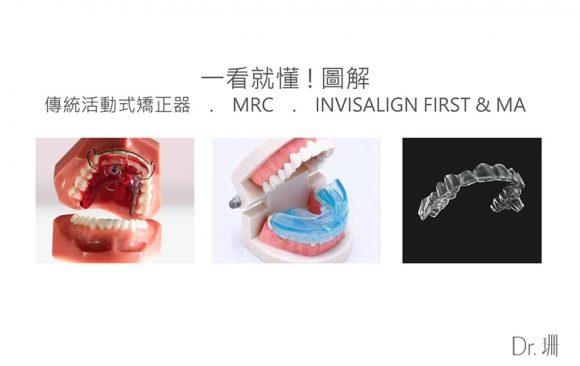 MRC是什麼?兒童牙齒矯正到底該不該做MRC?