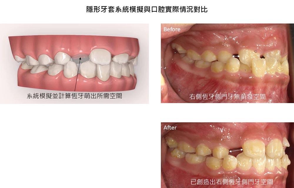 兒童隱適美-兒童牙齒矯正-推薦案例-乳牙-反咬-矯正前後比較-楊念珊醫師-台中