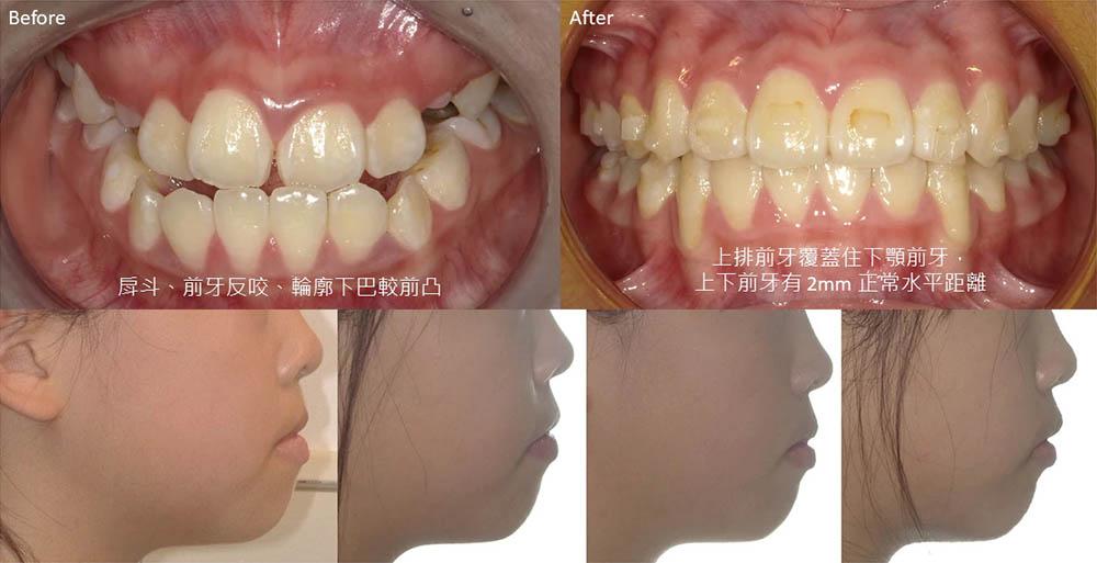 兒童隱適美-兒童牙齒矯正-推薦案例-戽斗-反咬-矯正前後比較-楊念珊醫師-台中