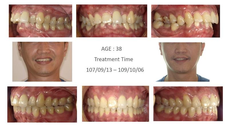 隱適美-隱形矯正-深咬-牙齒擁擠-拔智齒矯正-隱適美骨釘-牙齒矯正前後-牙齒變化-台中隱適美推薦-楊念珊