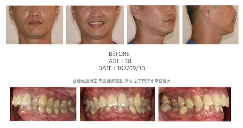 隱適美-隱形矯正-深咬-牙齒擁擠-牙齒矯正前-台中隱適美推薦-楊念珊