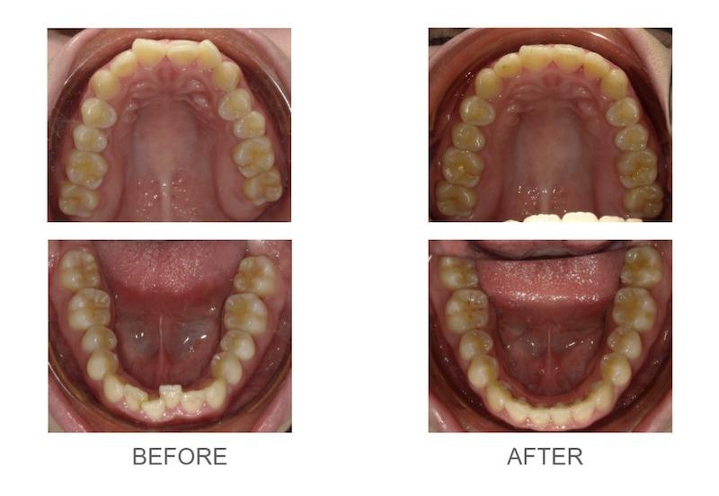 隱適美-隱形矯正-牙齒擁擠-牙齒矯正前後-台中隱適美推薦-楊念珊