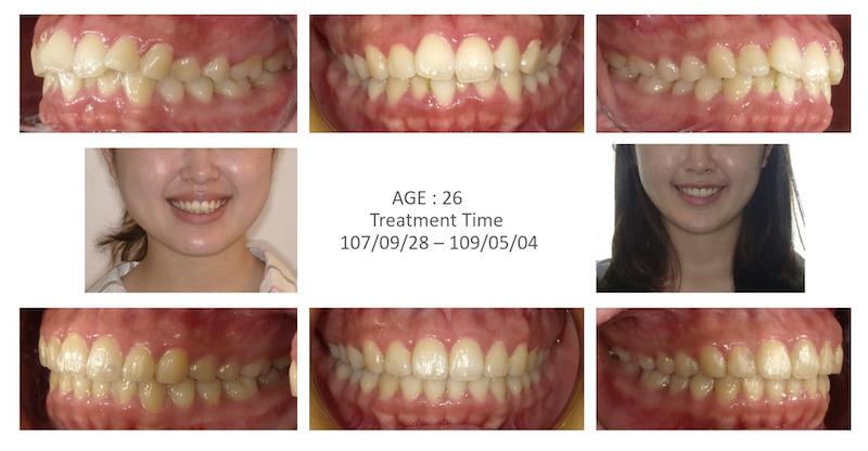 隱適美-隱形矯正-牙齒擁擠-牙齒矯正前後-牙齒變化-台中隱適美推薦-楊念珊