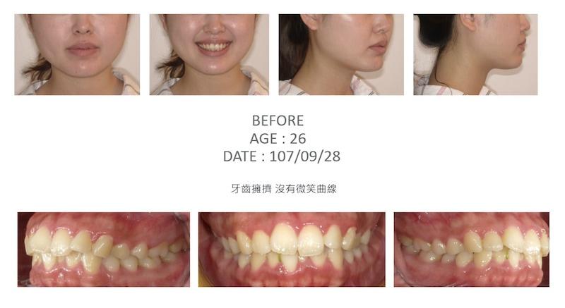 隱適美-隱形矯正-牙齒擁擠-牙齒矯正前-台中隱適美推薦-楊念珊