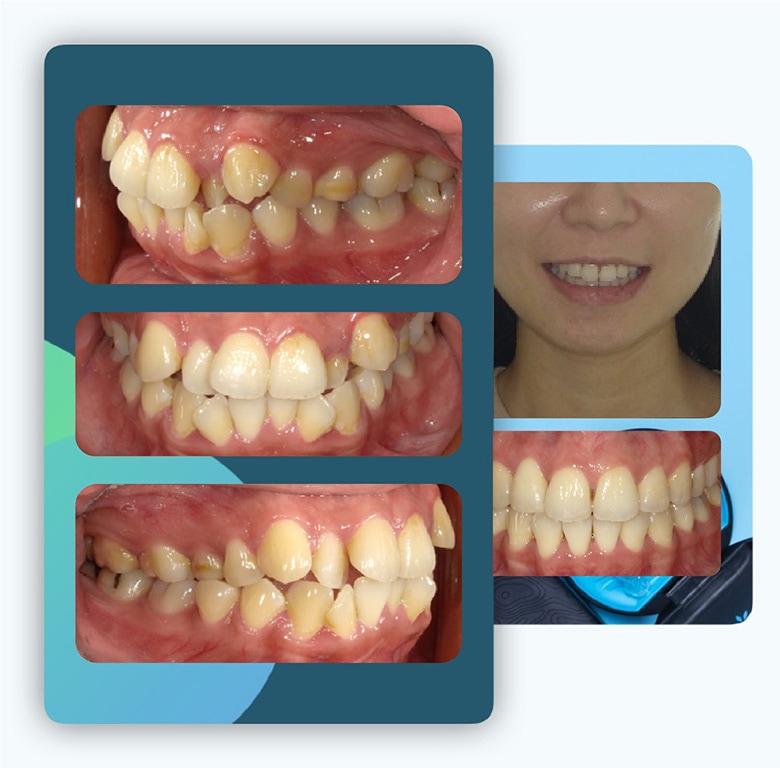 隱適美-隱形矯正-矯正拔小臼齒-台中-牙醫-推薦