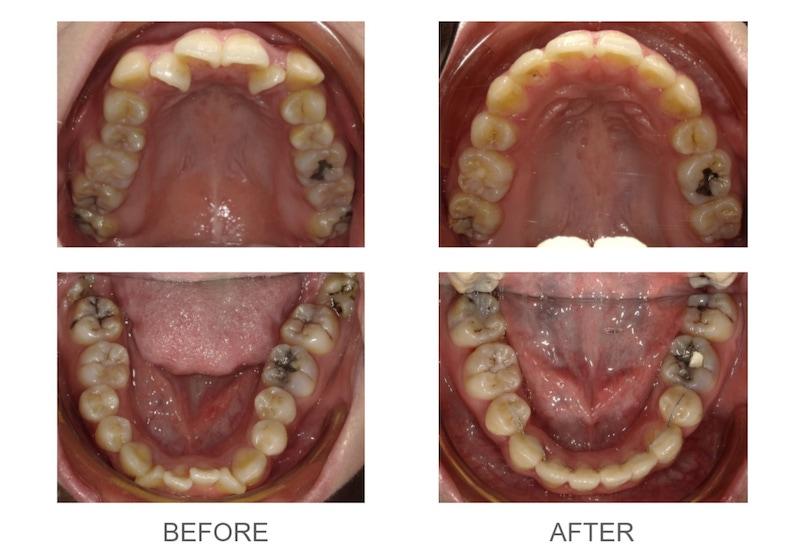 隱適美-隱形矯正-矯正拔小臼齒-牙齒矯正前後-台中隱適美推薦-楊念珊醫師