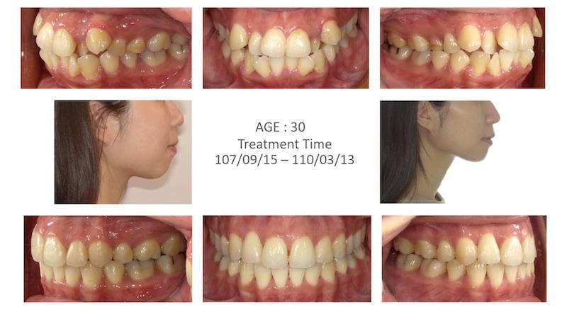 隱適美-隱形矯正-矯正拔小臼齒-牙齒矯正前後-牙齒變化-台中隱適美推薦-楊念珊醫師