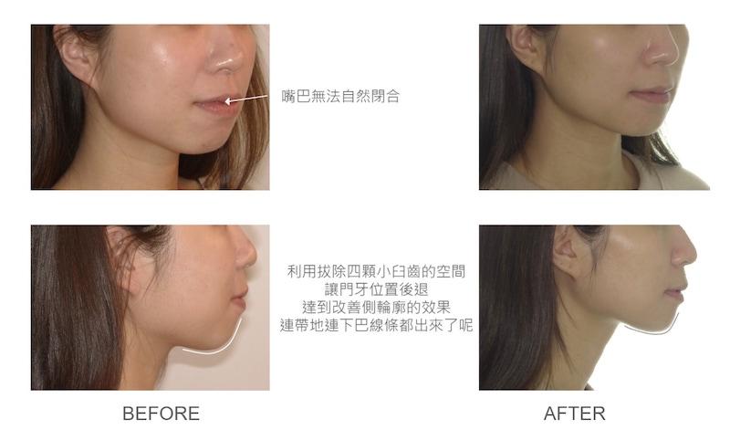 隱適美-隱形矯正-矯正拔小臼齒-牙齒矯正前後-臉型變化-台中隱適美推薦-楊念珊醫師