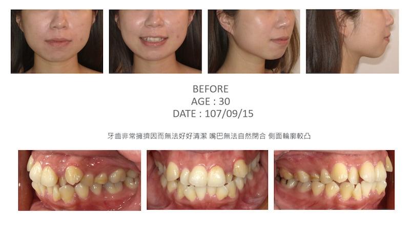 隱適美-隱形矯正-矯正拔小臼齒-牙齒矯正前-台中隱適美推薦-楊念珊醫師