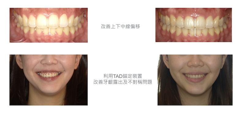 隱適美-隱形矯正-笑露牙齦-牙齦不對稱-隱適美骨釘-牙齒矯正前後-台中隱適美推薦-楊念珊