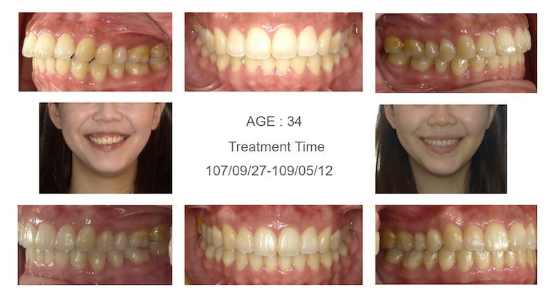 隱適美-隱形矯正-笑露牙齦-牙齦不對稱-隱適美骨釘-牙齒矯正前後-牙齒變化-台中隱適美推薦-楊念珊