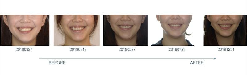 隱適美-隱形矯正-笑露牙齦-牙齦不對稱-隱適美骨釘-牙齒矯正前後-牙齦變化-台中隱適美推薦-楊念珊