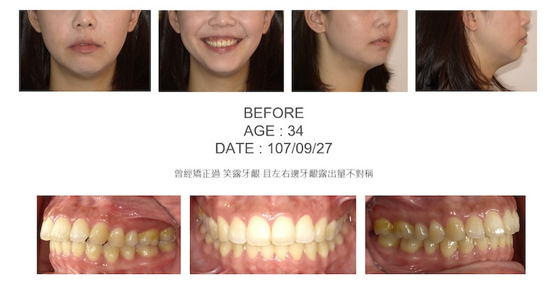 隱適美-隱形矯正-笑露牙齦-牙齦不對稱-隱適美骨釘-牙齒矯正前-台中隱適美推薦-楊念珊
