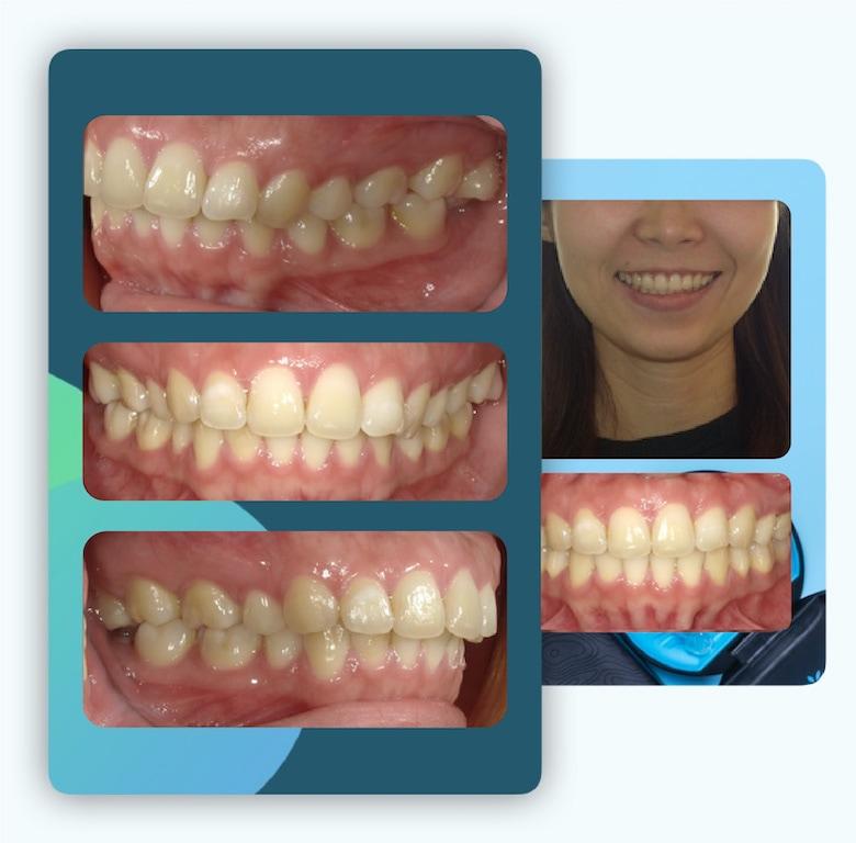 隱適美-隱形矯正-骨暴-笑露牙齦-台中-牙醫-推薦