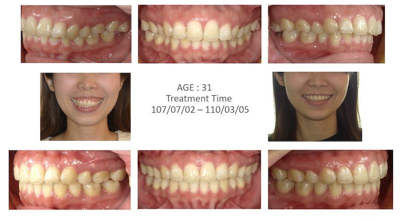 隱適美-隱形矯正-骨暴-笑露牙齦-牙齒矯正前後-牙齒變化-台中隱適美推薦-楊念珊