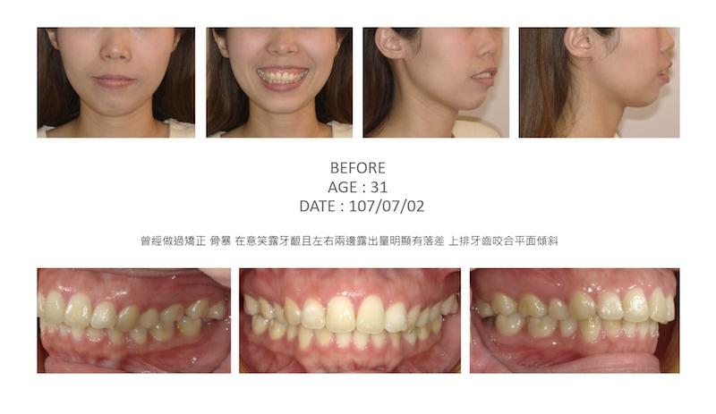 隱適美-隱形矯正-骨暴-笑露牙齦-牙齒矯正前-台中隱適美推薦-楊念珊