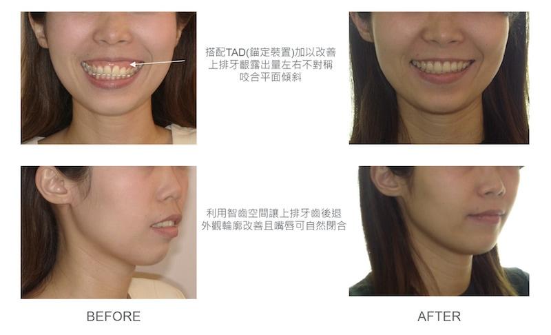 隱適美-隱形矯正-骨暴-笑露牙齦-隱適美骨釘-牙齒矯正前後-牙齒與臉型變化-台中隱適美推薦-楊念珊