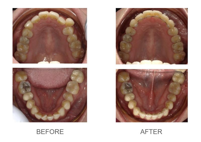 隱適美-隱形矯正-小虎牙-犬齒突出-牙齒擁擠-反咬-牙齒矯正前後-台中隱適美推薦-楊念珊