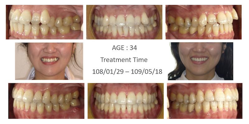 隱適美-隱形矯正-小虎牙-犬齒突出-牙齒擁擠-反咬-牙齒矯正前後-牙齒變化-台中隱適美推薦-楊念珊