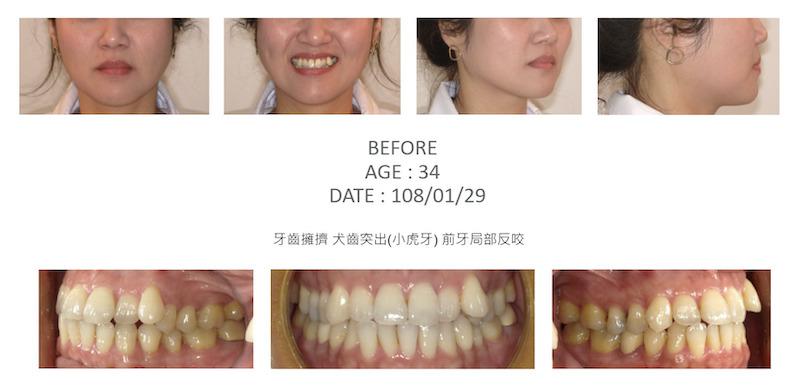 隱適美-隱形矯正-小虎牙-犬齒突出-牙齒擁擠-反咬-牙齒矯正前-台中隱適美推薦-楊念珊